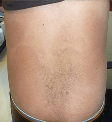 psoriasis on back treatment
