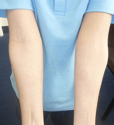 psoriasis on hands treatment