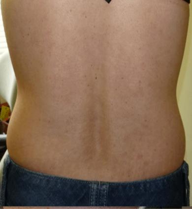 psoriasis treatment photos