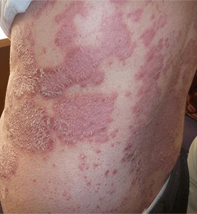psoriasis treatment in melbourne