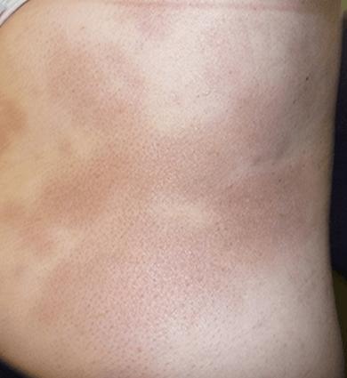 psoriasis treatment in australia
