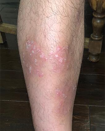 psoriasis on legs treatment